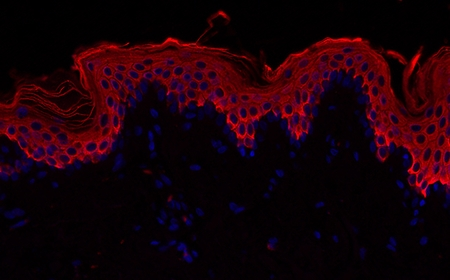 Normal skin: nuclei (DAPI Blue colorant) and epithelial cells (CK10 red colorant)