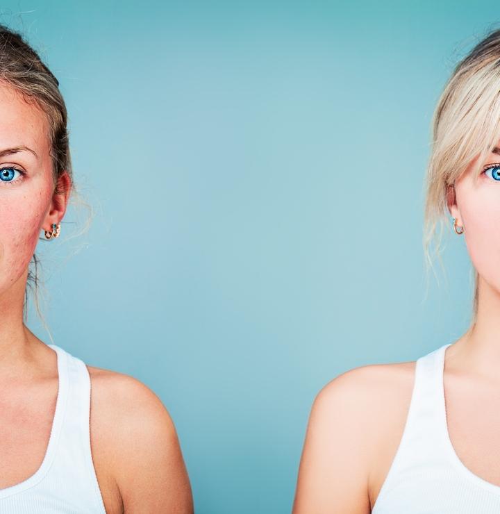 5 coisas que precisa de saber sobre a rosácea