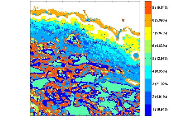 Human skin with filler infrared analysis