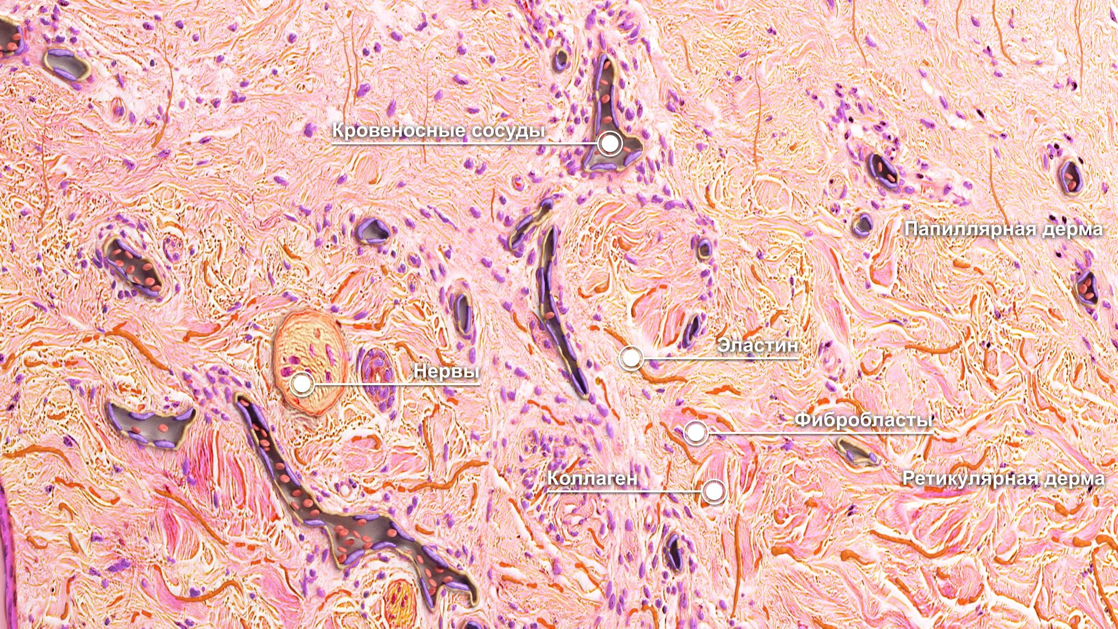 2D virtual skin biopsy dermis