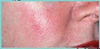 symptom-rosacea-2019-1