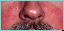 symptom-rosacea-2019-4