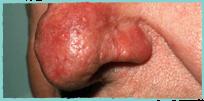 symptom-rosacea-2019-5